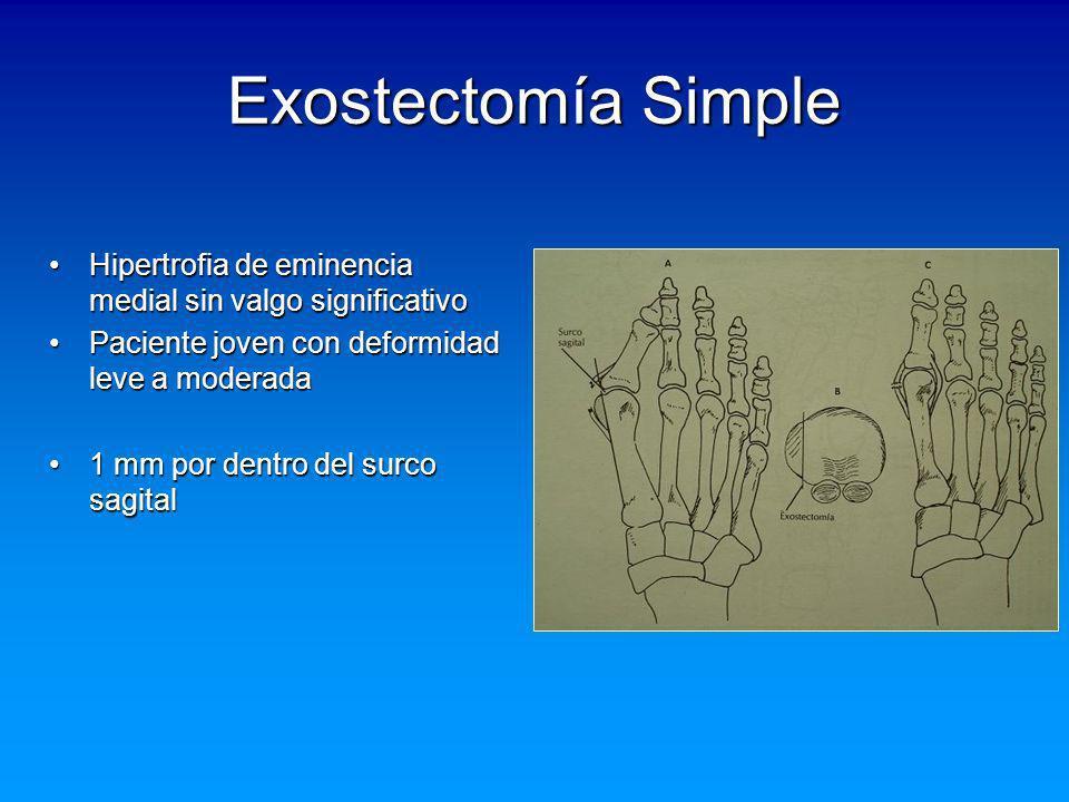 Exostectomía Simple Hipertrofia de eminencia medial sin valgo significativoHipertrofia de eminencia medial sin valgo significativo Paciente joven con