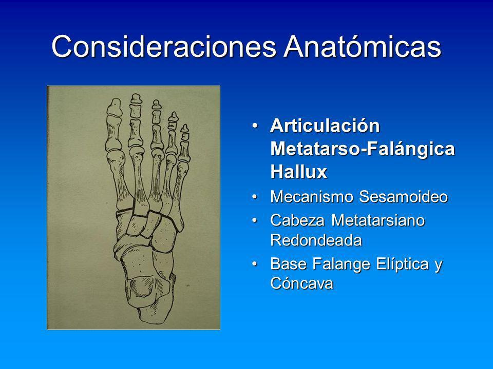 Consideraciones Anatómicas Articulación Metatarso-Falángica HalluxArticulación Metatarso-Falángica Hallux Mecanismo SesamoideoMecanismo Sesamoideo Cab