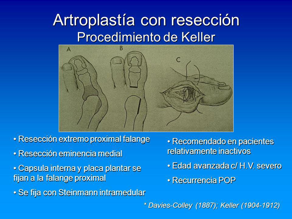 Artroplastía con resección Procedimiento de Keller * Davies-Colley (1887); Keller (1904-1912) Resección extremo proximal falange Resección extremo pro