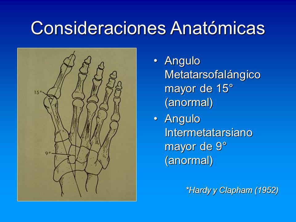 Consideraciones Anatómicas Angulo Metatarsofalángico mayor de 15° (anormal)Angulo Metatarsofalángico mayor de 15° (anormal) Angulo Intermetatarsiano m