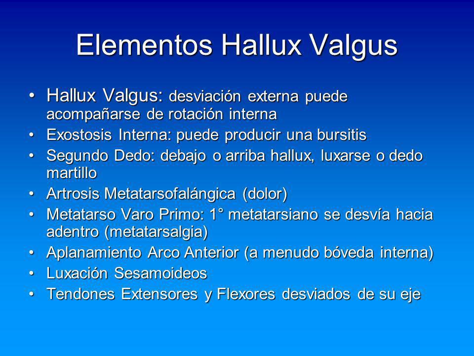 Elementos Hallux Valgus Hallux Valgus: desviación externa puede acompañarse de rotación internaHallux Valgus: desviación externa puede acompañarse de