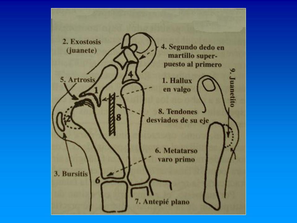 Artrodesis * Broca (1852); Clutton (1894); Du Vries (1965); McKeever (1952); Mann y Oates (1981) H.V.
