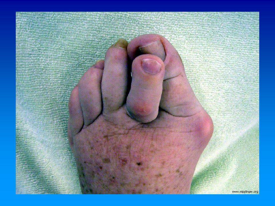 ARTICULACION Congruente Incongruente Artrosis MTF Tratamiento Quirúrgico Osteotomía en Chevron Exostectomía + partes blandas Exostectomía + osteotomía falángica Akin Angulo IM menor a 15° Angulo MTF menor a 30° Osteotomía distal Chevron (Menor 50a)Osteotomía distal Chevron (Menor 50a) Partes BlandasPartes Blandas Osteotomía Proximal + partes blandasOsteotomía Proximal + partes blandas Angulo IM mayor a 15° Angulo MTF mayor a 30° Partes Blandas + Osteotomía ProximalPartes Blandas + Osteotomía Proximal Osteotomía Falángica + Osteotomía en ChevronOsteotomía Falángica + Osteotomía en Chevron Angulo IM mayor a 20° Angulo MTF mayor a 40° Osteotomía Basal + Partes BlandasOsteotomía Basal + Partes Blandas Artrodesis MTFArtrodesis MTF ArtrodesisArtrodesis ArtroplastíaArtroplastía