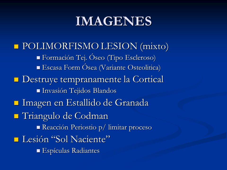 IMAGENES POLIMORFISMO LESION (mixto) POLIMORFISMO LESION (mixto) Formación Tej. Óseo (Tipo Escleroso) Formación Tej. Óseo (Tipo Escleroso) Escasa Form