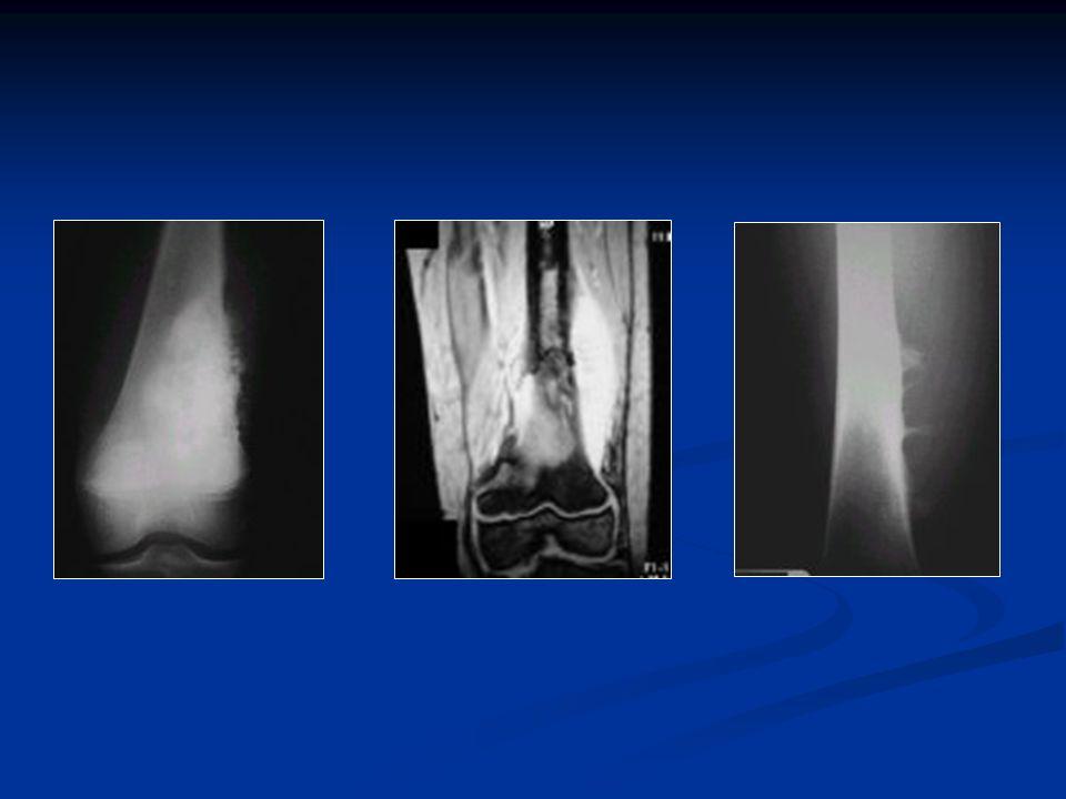ESTUDIOS TAC y RMN TAC y RMN Esenciales para estadificar antes del TTO Esenciales para estadificar antes del TTO Centellograma corporal Total con tecnecio 99 Centellograma corporal Total con tecnecio 99 Descartar multicentricidad o metástasis óseas Descartar multicentricidad o metástasis óseas TAC Tórax TAC Tórax Metástasis pulmonares tempranas por vía hematógena Metástasis pulmonares tempranas por vía hematógena FAL FAL En el 50% hay elevación de la Fosfatasa Alcalina Sérica En el 50% hay elevación de la Fosfatasa Alcalina Sérica Valor Pronóstico Valor Pronóstico