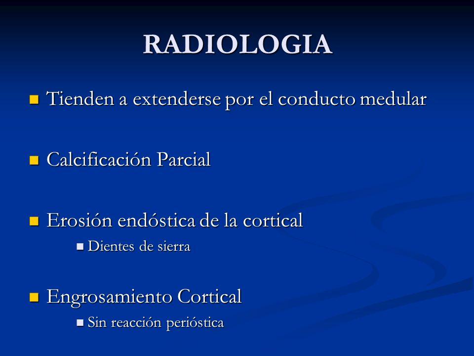 RADIOLOGIA Tienden a extenderse por el conducto medular Tienden a extenderse por el conducto medular Calcificación Parcial Calcificación Parcial Erosi