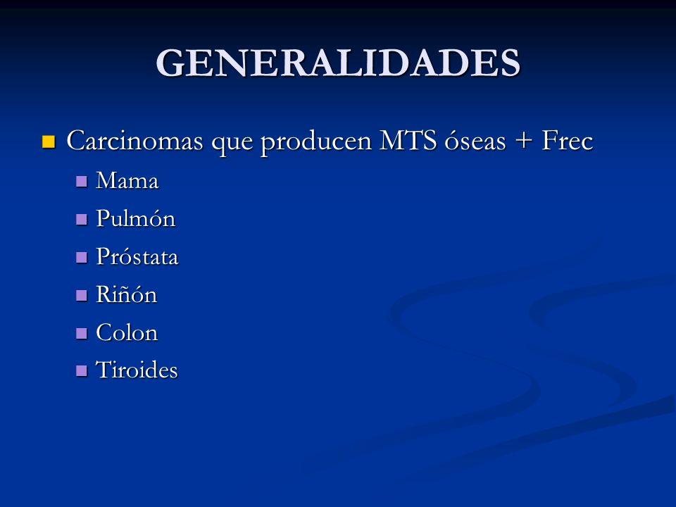 GENERALIDADES Carcinomas que producen MTS óseas + Frec Carcinomas que producen MTS óseas + Frec Mama Mama Pulmón Pulmón Próstata Próstata Riñón Riñón