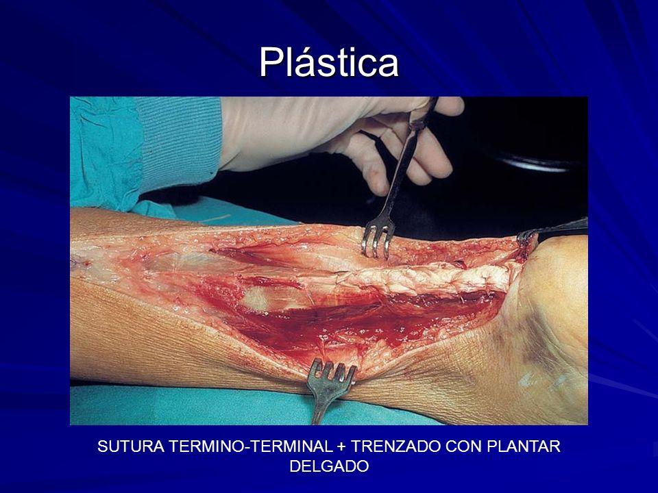 Plástica SUTURA TERMINO-TERMINAL + TRENZADO CON PLANTAR DELGADO