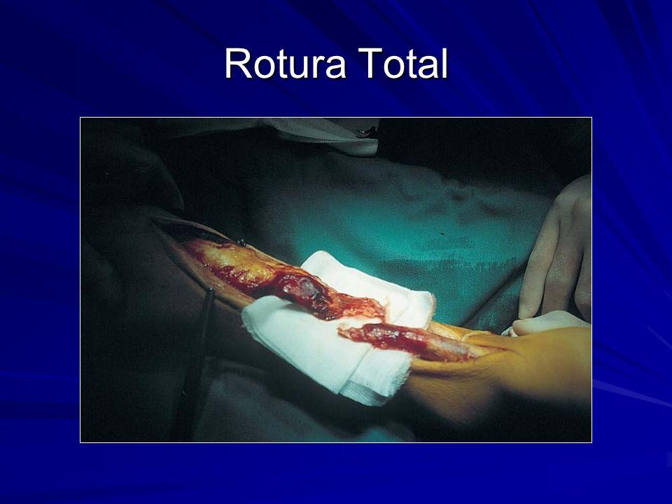 Rotura Total