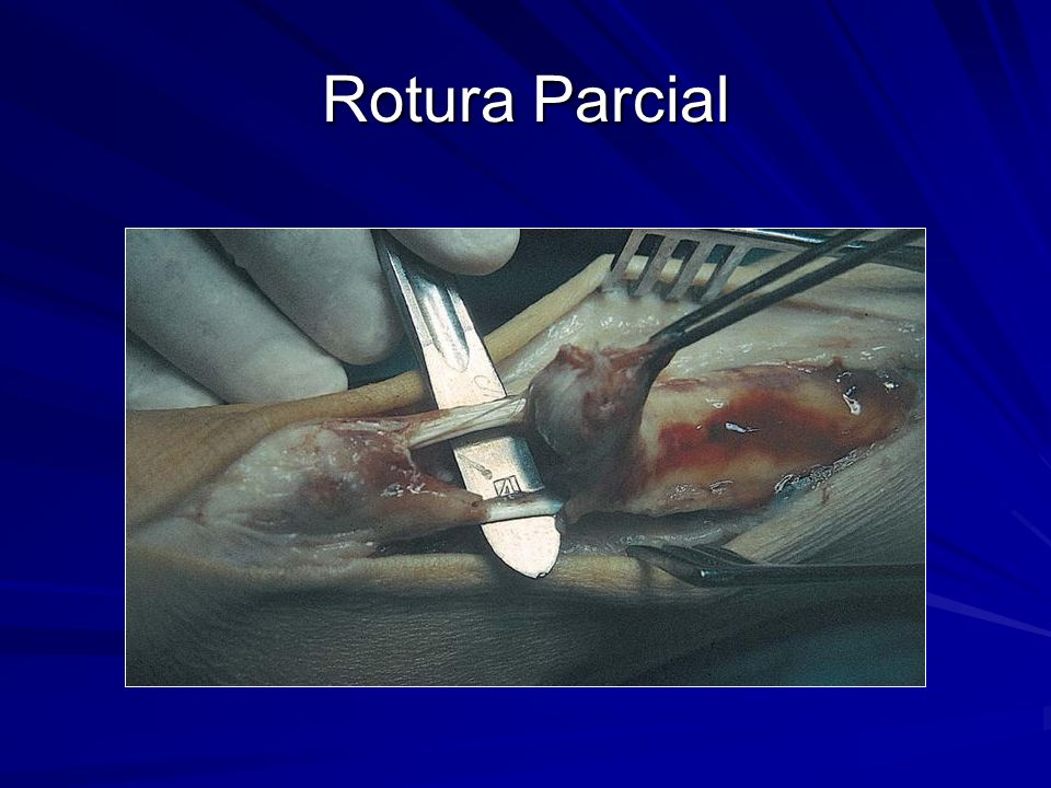 Rotura Parcial