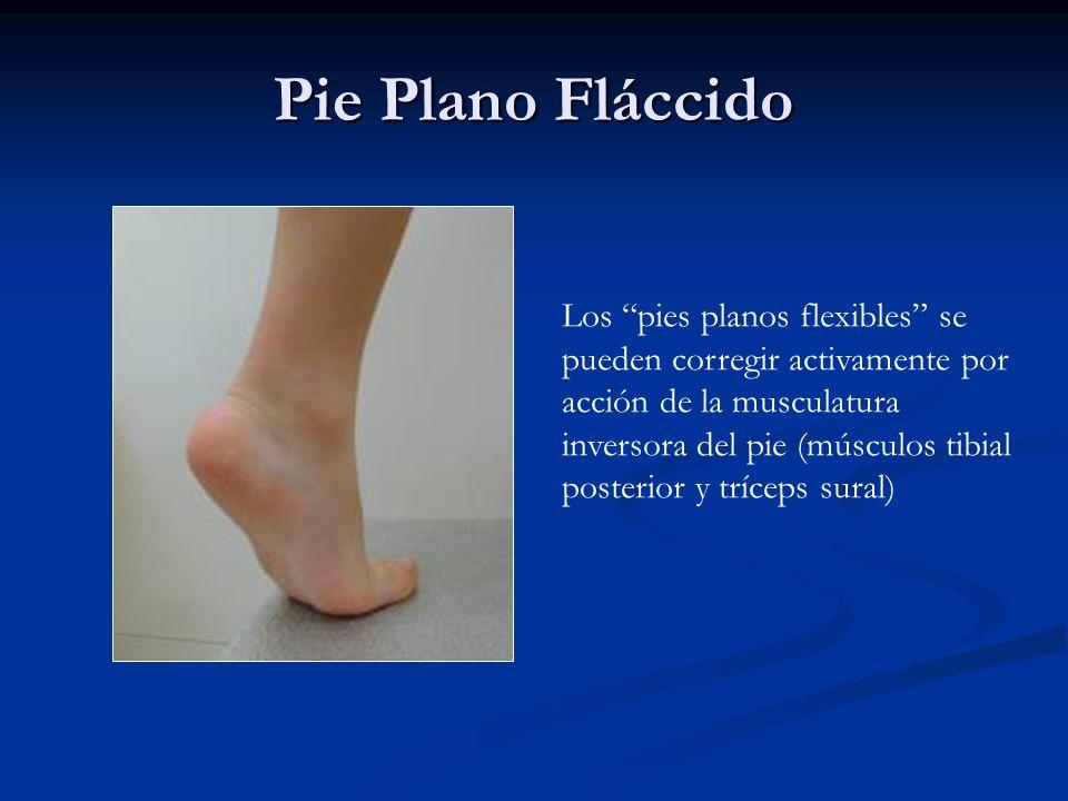 Pie Plano Fláccido Los pies planos flexibles se pueden corregir activamente por acción de la musculatura inversora del pie (músculos tibial posterior