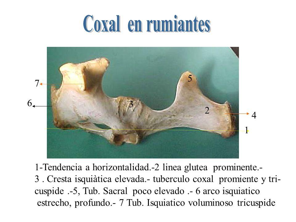1 2 3 1- -r.Acetabular eminencia iliopectinea en forma de cresta.- 2R.