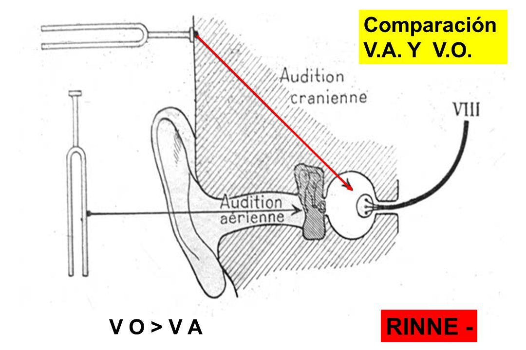 RINNE - V O > V A Comparación V.A. Y V.O.
