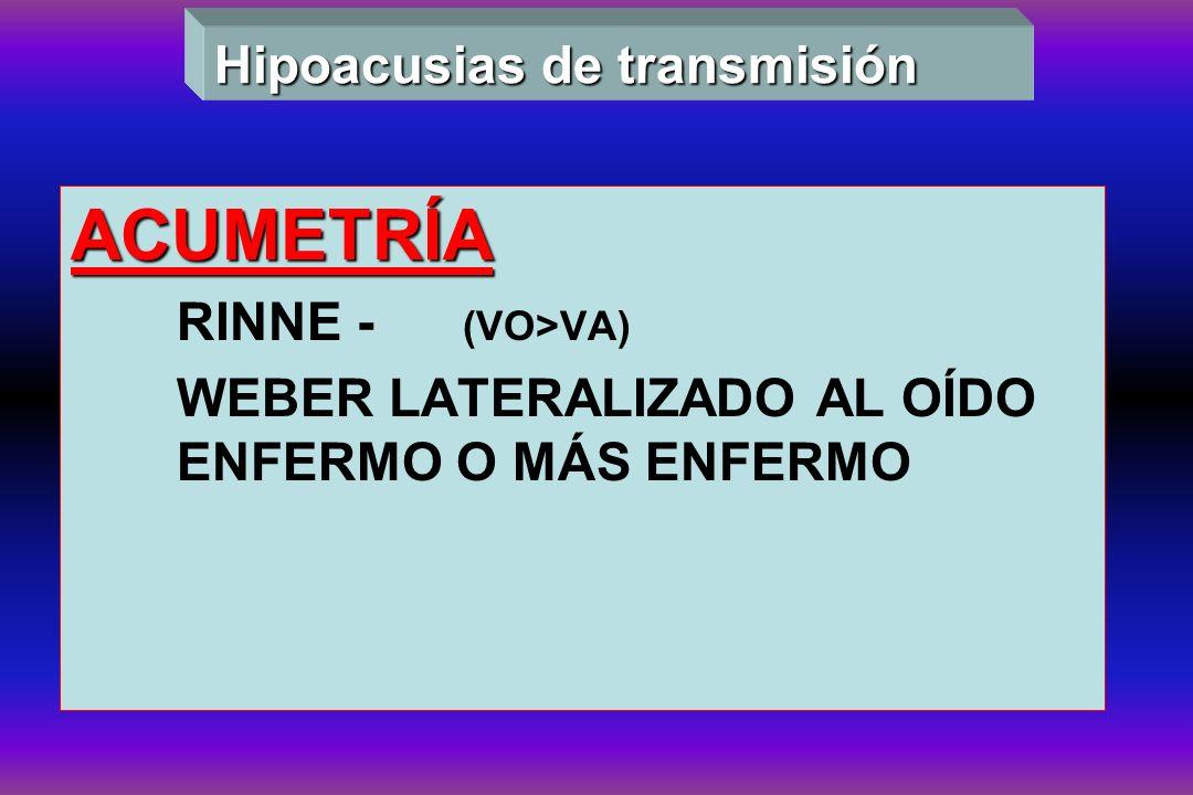 ACUMETRÍA RINNE - (VO>VA) WEBER LATERALIZADO AL OÍDO ENFERMO O MÁS ENFERMO Hipoacusias de transmisión