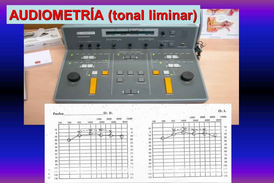 AUDIOMETRÍA (tonal liminar)