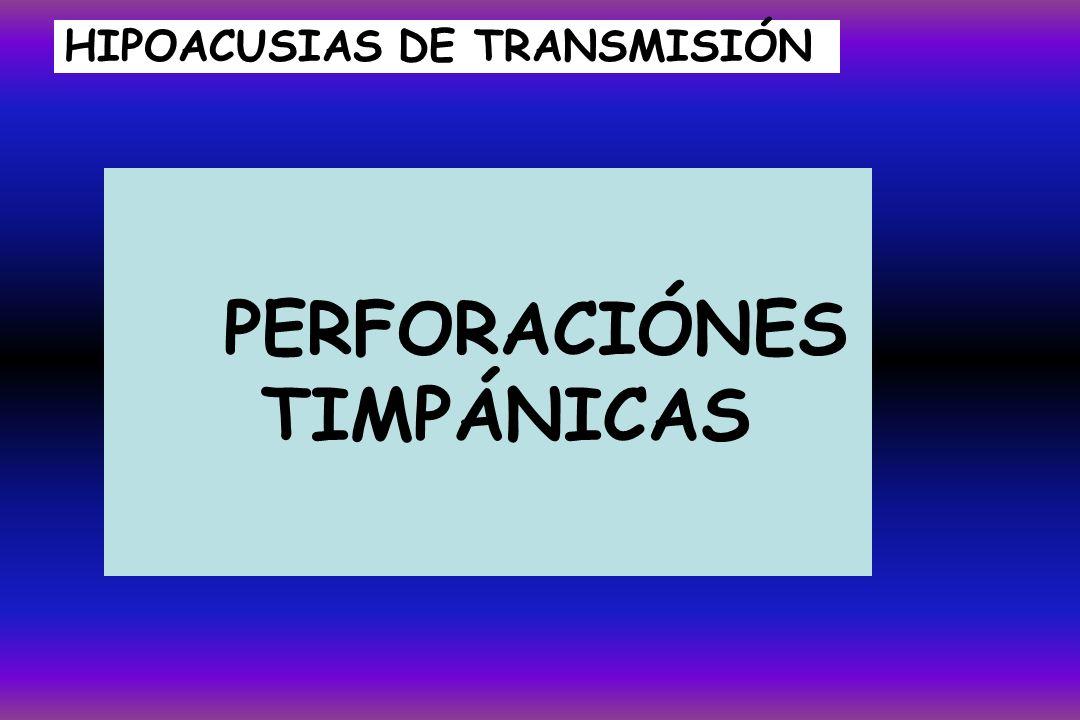 HIPOACUSIAS DE TRANSMISIÓN PERFORACIÓNES TIMPÁNICAS