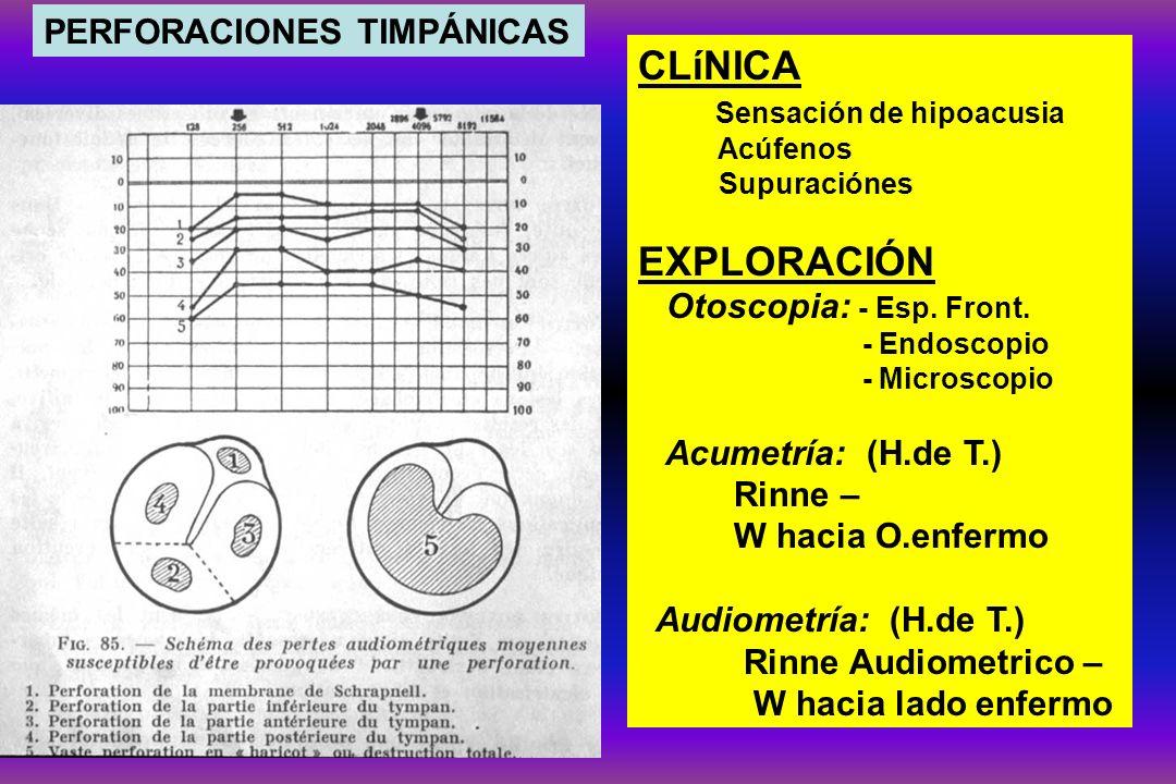 CLíNICA Sensación de hipoacusia Acúfenos Supuraciónes EXPLORACIÓN Otoscopia: - Esp. Front. - Endoscopio - Microscopio Acumetría: (H.de T.) Rinne – W h
