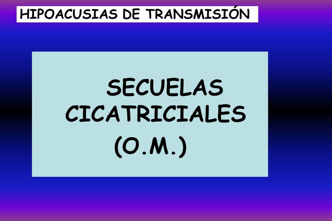HIPOACUSIAS DE TRANSMISIÓN SECUELAS CICATRICIALES (O.M.)