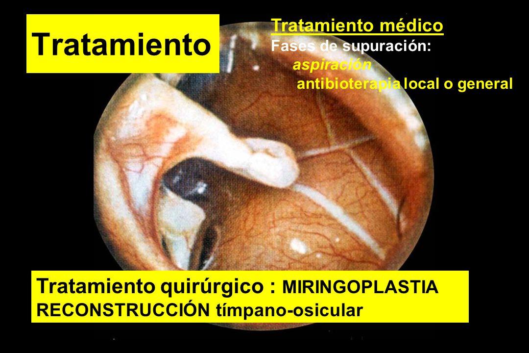 Tratamiento Tratamiento médico Fases de supuración: aspiración antibioterapia local o general Tratamiento quirúrgico : MIRINGOPLASTIA RECONSTRUCCIÓN t