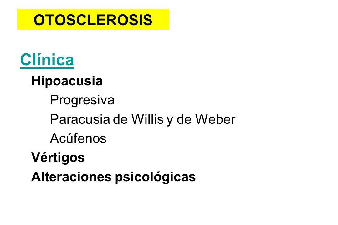 OTOSCLEROSIS Clínica Hipoacusia Progresiva Paracusia de Willis y de Weber Acúfenos Vértigos Alteraciones psicológicas