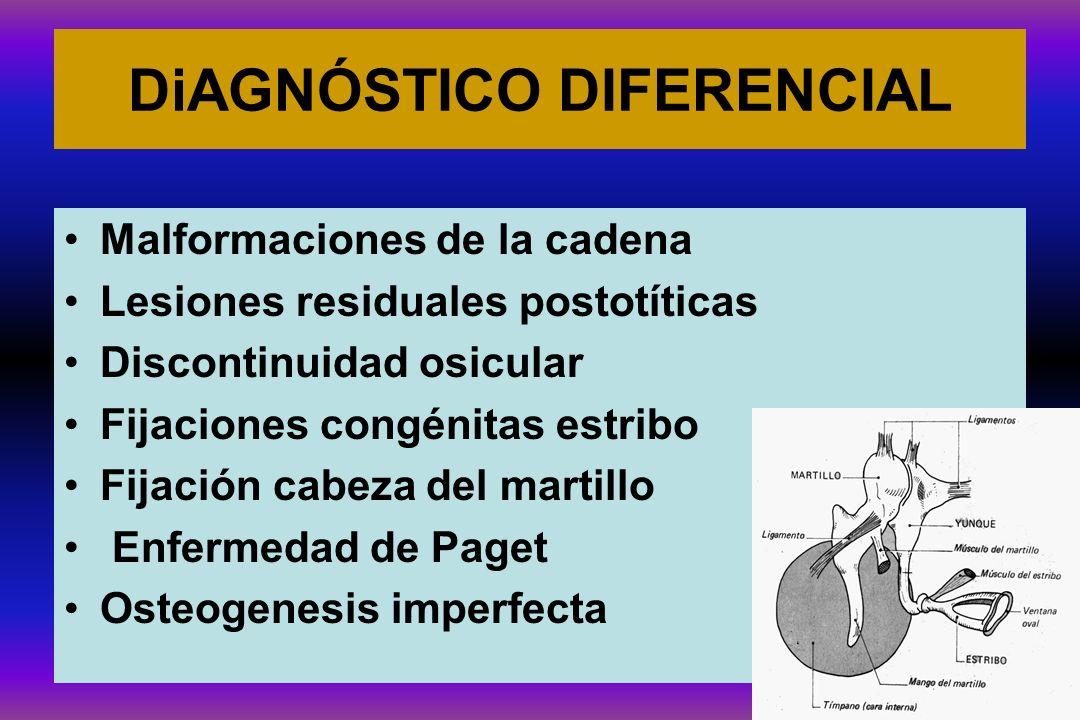 DiAGNÓSTICO DIFERENCIAL Malformaciones de la cadena Lesiones residuales postotíticas Discontinuidad osicular Fijaciones congénitas estribo Fijación ca