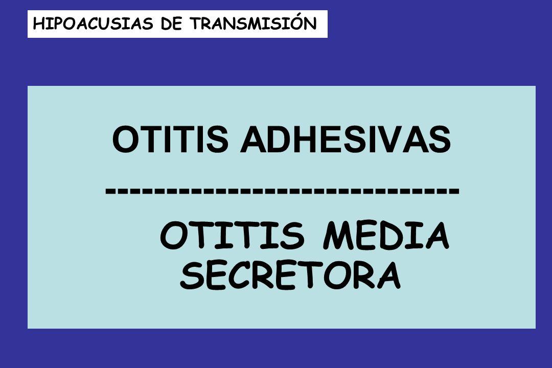 HIPOACUSIAS DE TRANSMISIÓN OTITIS ADHESIVAS ----------------------------- OTITIS MEDIA SECRETORA