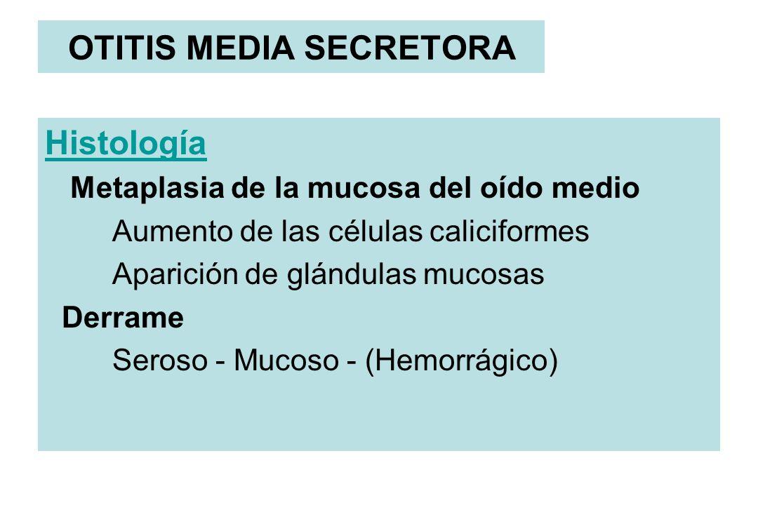 OTITIS MEDIA SECRETORA Histología Metaplasia de la mucosa del oído medio Aumento de las células caliciformes Aparición de glándulas mucosas Derrame Se