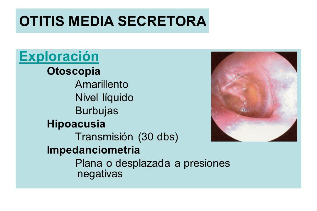 OTITIS MEDIA SECRETORA Exploración Otoscopia Amarillento Nivel líquido Burbujas Hipoacusia Transmisión (30 dbs) Impedanciometría Plana o desplazada a