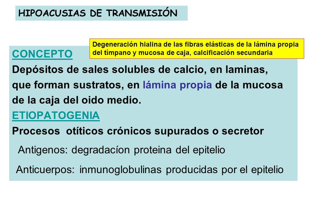 HIPOACUSIAS DE TRANSMISIÓN CONCEPTO Depósitos de sales solubles de calcio, en laminas, que forman sustratos, en lámina propia de la mucosa de la caja