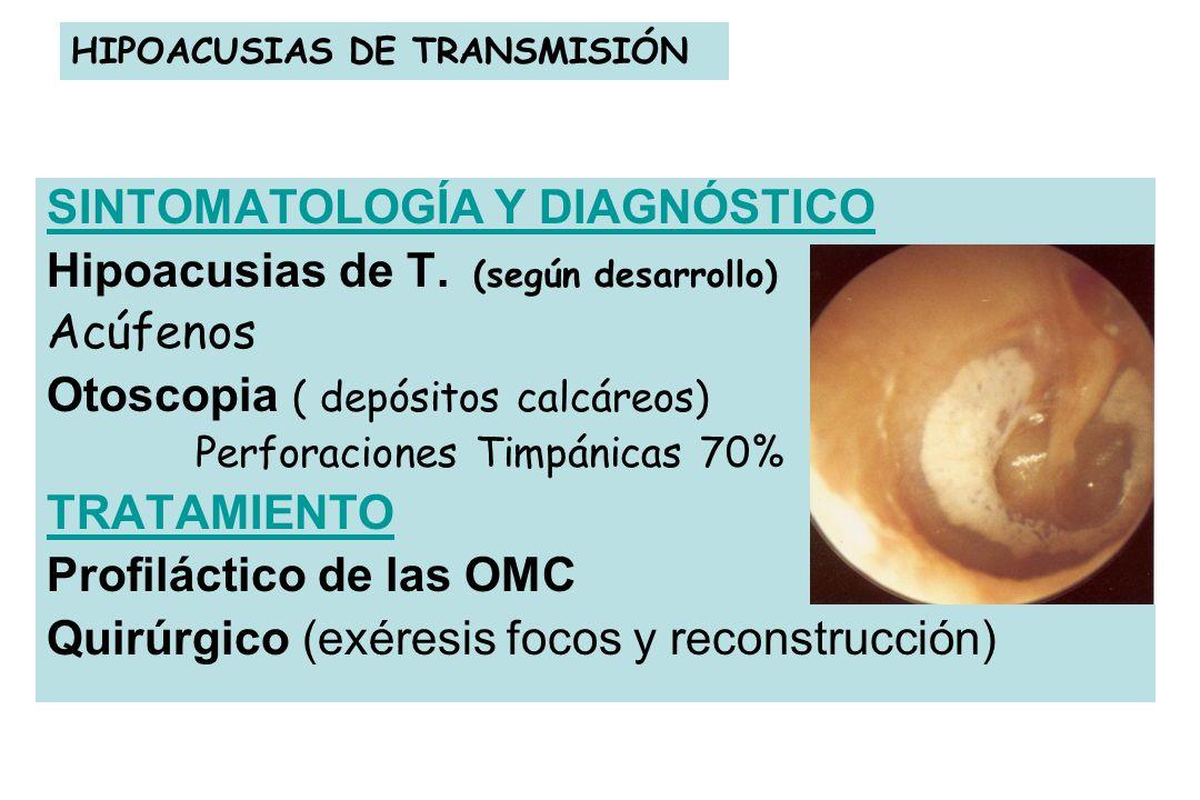 HIPOACUSIAS DE TRANSMISIÓN SINTOMATOLOGÍA Y DIAGNÓSTICO Hipoacusias de T. (según desarrollo) Acúfenos Otoscopia ( depósitos calcáreos) Perforaciones T