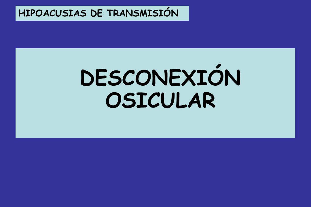 HIPOACUSIAS DE TRANSMISIÓN DESCONEXIÓN OSICULAR