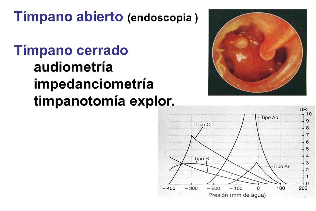 Tímpano abierto (endoscopia ) Tímpano cerrado audiometría impedanciometría timpanotomía explor.