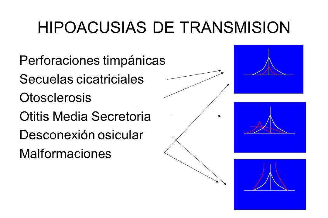 HIPOACUSIAS DE TRANSMISION Perforaciones timpánicas Secuelas cicatriciales Otosclerosis Otitis Media Secretoria Desconexión osicular Malformaciones
