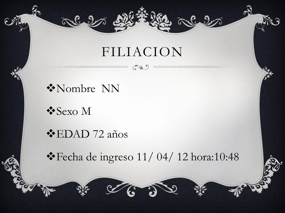 FILIACION Nombre NN Sexo M EDAD 72 años Fecha de ingreso 11/ 04/ 12 hora:10:48
