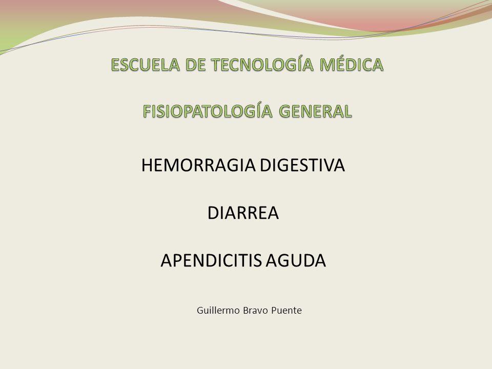 HEMORRAGIA DIGESTIVA DIARREA APENDICITIS AGUDA Guillermo Bravo Puente