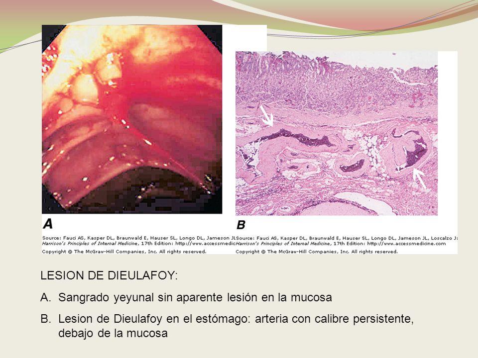 LESION DE DIEULAFOY: A.Sangrado yeyunal sin aparente lesión en la mucosa B.Lesion de Dieulafoy en el estómago: arteria con calibre persistente, debajo