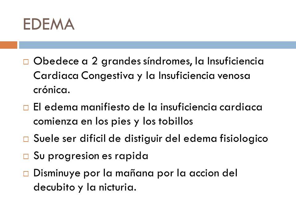 EDEMA Obedece a 2 grandes síndromes, la Insuficiencia Cardiaca Congestiva y la Insuficiencia venosa crónica. El edema manifiesto de la insuficiencia c