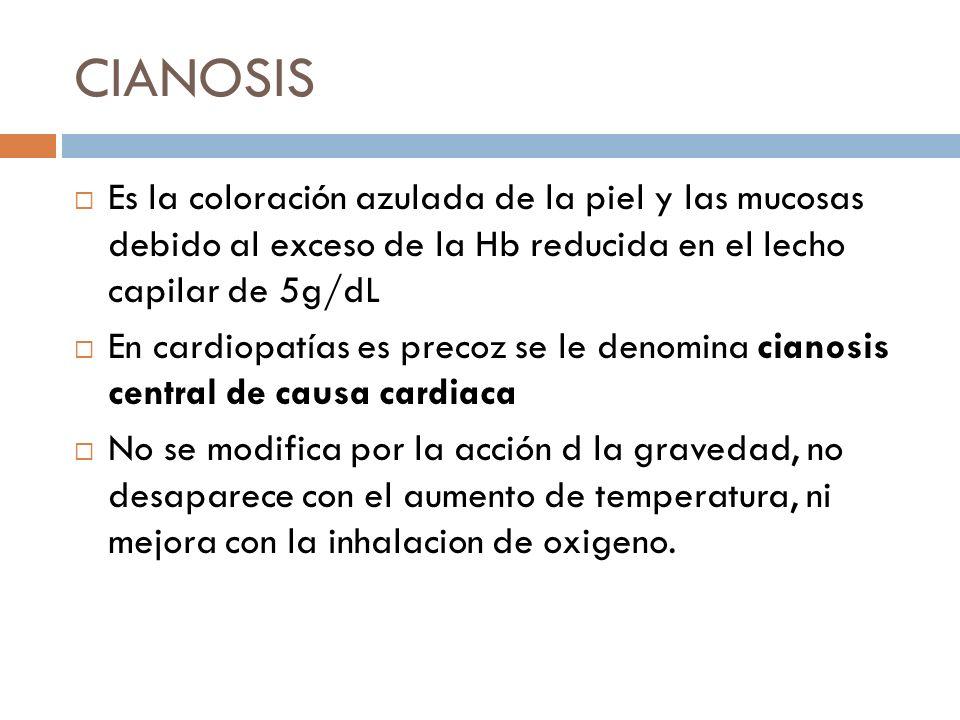 CIANOSIS Es la coloración azulada de la piel y las mucosas debido al exceso de la Hb reducida en el lecho capilar de 5g/dL En cardiopatías es precoz s