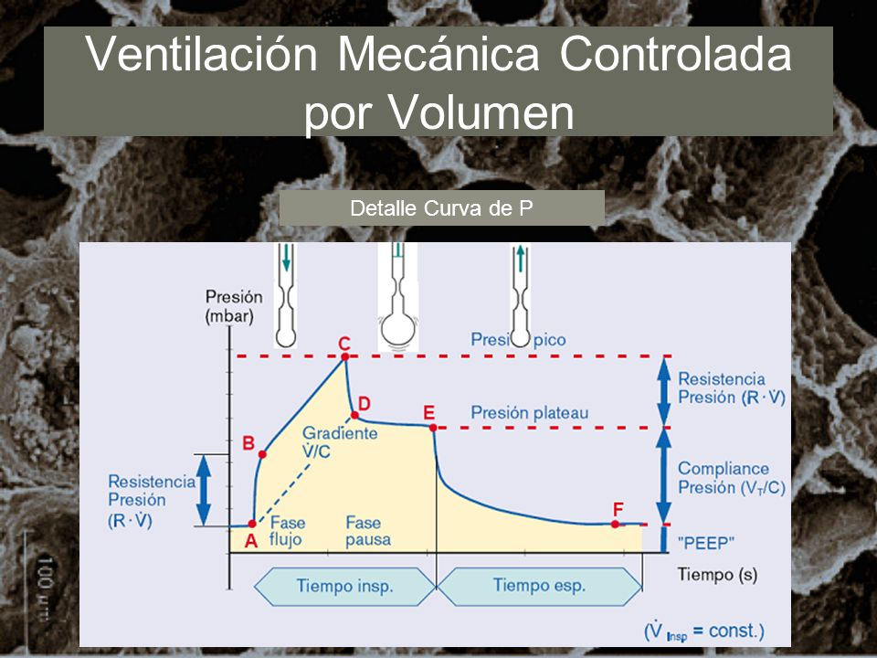 Ventilación Mecánica Controlada por Volumen Detalle Curva de P