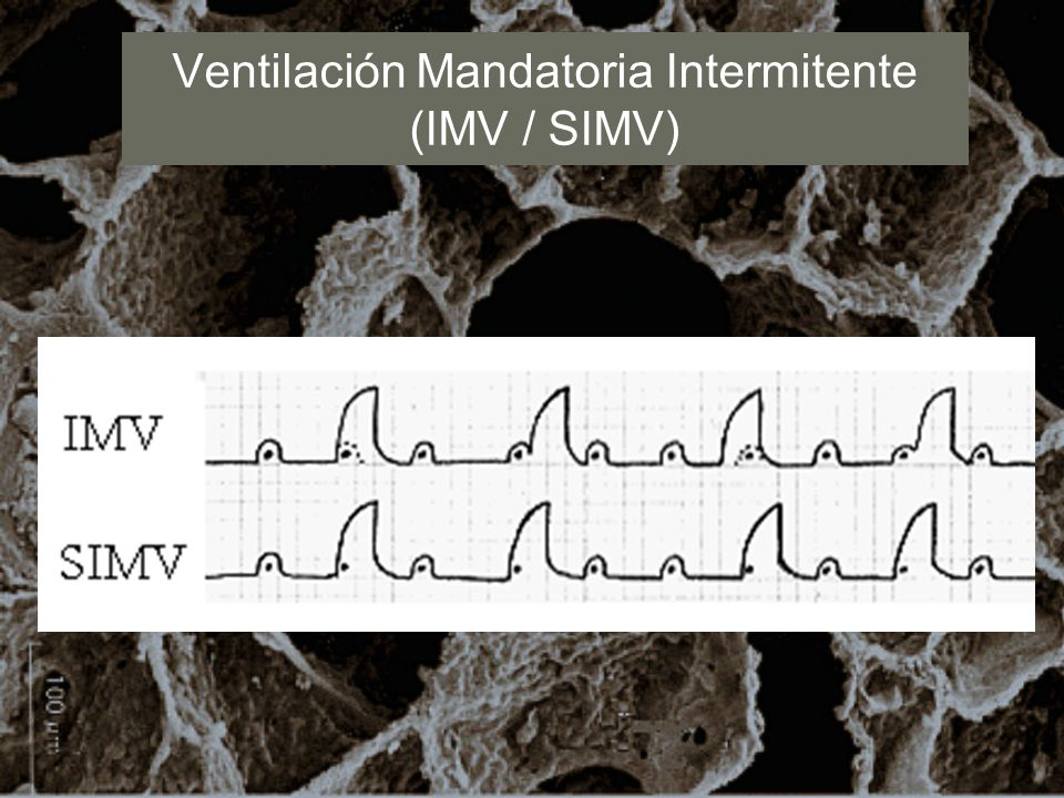Ventilación Mandatoria Intermitente (IMV / SIMV)