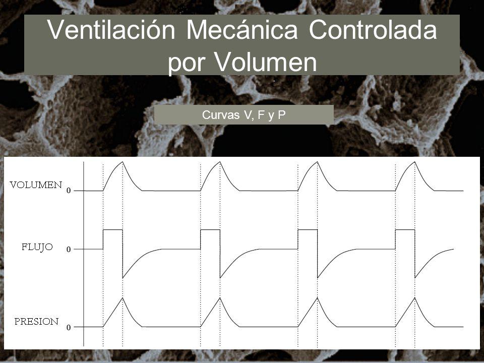 Ventilación Mecánica Controlada por Volumen Curvas V, F y P
