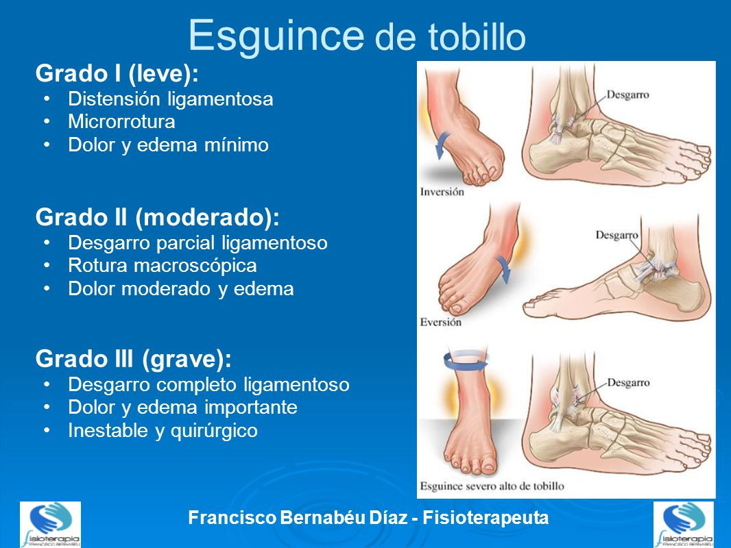 Esguince de tobillo Francisco Bernabéu Díaz - Fisioterapeuta Grado I (leve): Distensión ligamentosa Microrrotura Dolor y edema mínimo Grado II (modera