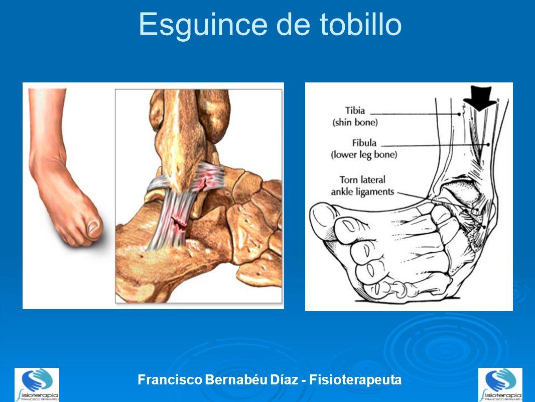 Francisco Bernabéu Díaz - Fisioterapeuta Esguince de tobillo