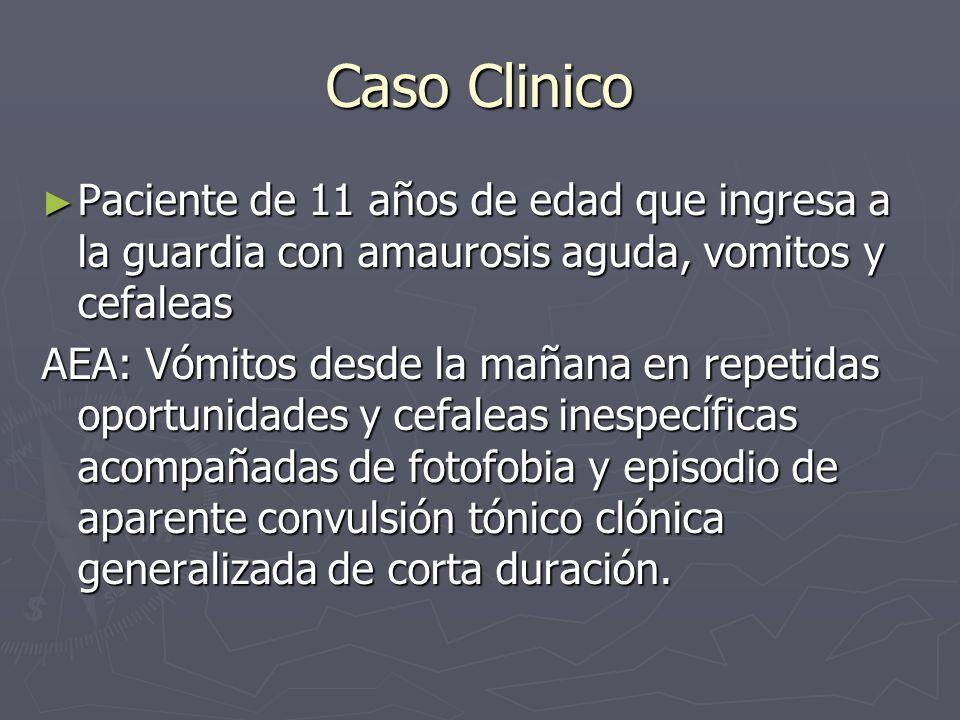 Caso Clinico Paciente de 11 años de edad que ingresa a la guardia con amaurosis aguda, vomitos y cefaleas Paciente de 11 años de edad que ingresa a la