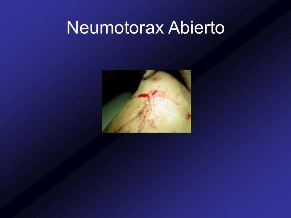 Neumotorax Abierto
