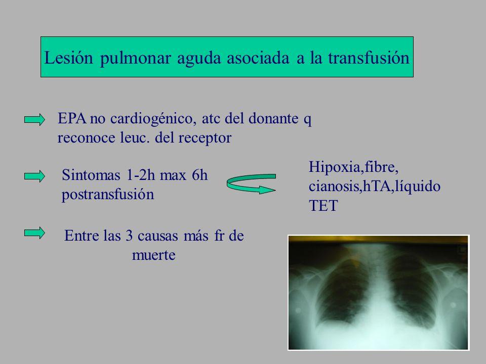 Lesión pulmonar aguda asociada a la transfusión EPA no cardiogénico, atc del donante q reconoce leuc. del receptor Sintomas 1-2h max 6h postransfusión