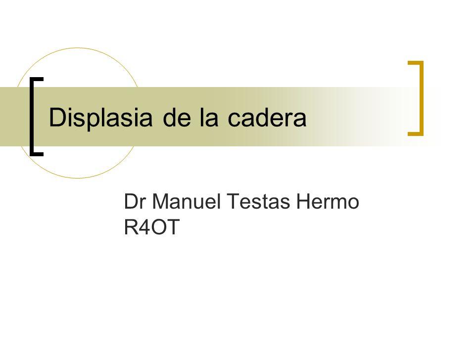 Displasia de la cadera Dr Manuel Testas Hermo R4OT