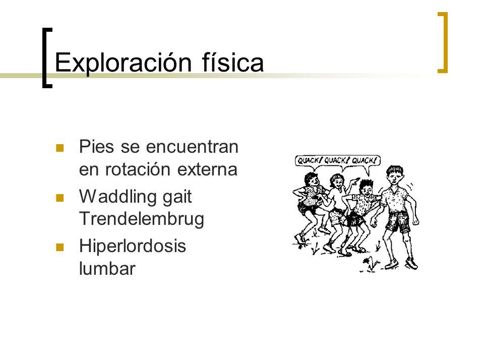 Exploración física Pies se encuentran en rotación externa Waddling gait Trendelembrug Hiperlordosis lumbar