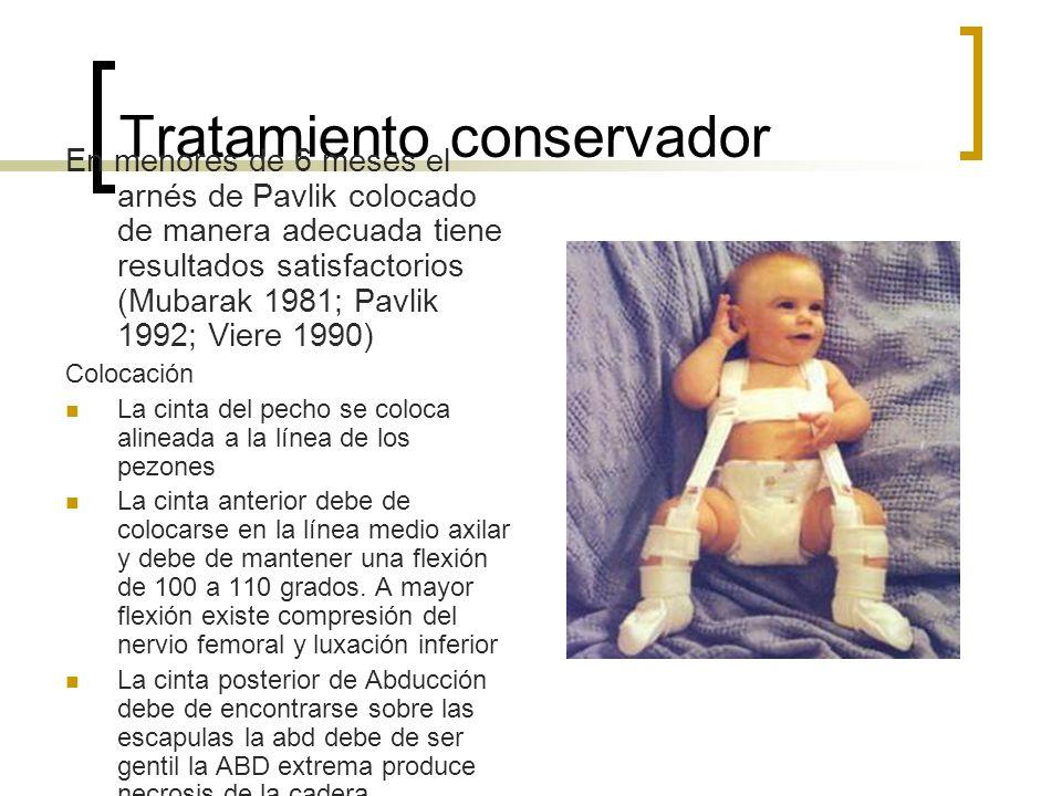 Tratamiento conservador En menores de 6 meses el arnés de Pavlik colocado de manera adecuada tiene resultados satisfactorios (Mubarak 1981; Pavlik 199