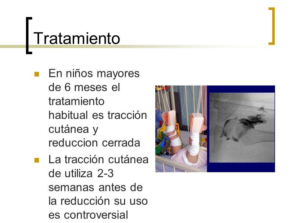 Tratamiento En niños mayores de 6 meses el tratamiento habitual es tracción cutánea y reduccion cerrada La tracción cutánea de utiliza 2-3 semanas ant